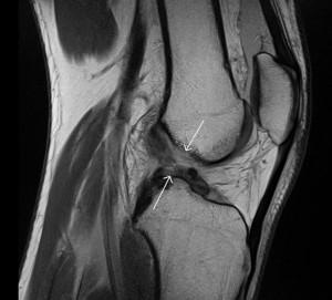 Разрив крестообразной связки коленного сустава