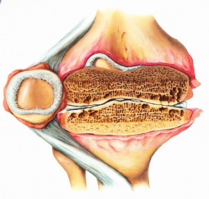 Схема артрита колена