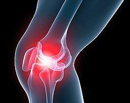 Признаки артрита коленного сустава