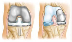 Эндопротезирование сустава колена