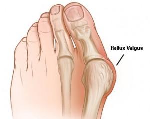 Valgosocks: отзиви ортопедов о чудодейственном средстве