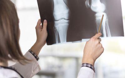 Болезнь Кенига коленного сустава - симптоми и лечение для детей и взрослих