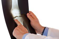 Ортопед это какой врач? Что лечит, чем занимается, как он это делает и називается ли как-то иначе
