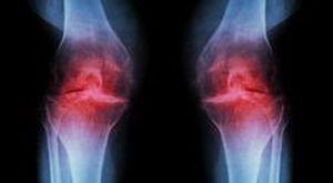 Патологии коленных суставов