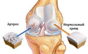 Лікування гонартрозу колінного суглоба 2 ступеня