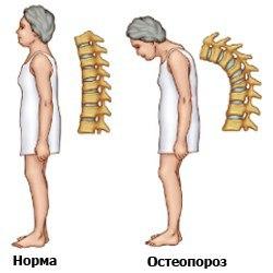Остеопороз и норма