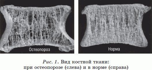 Фото костной ткани при остеопении и остеопорозе