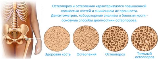 Разница между остеопенией и остеопорозом на примере костной ткани