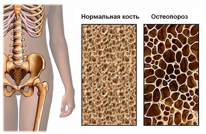 Признаки и симптомы остеопении