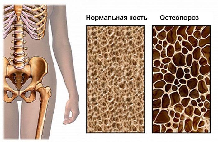 Изменения в кости при остеопении и остеопорозе