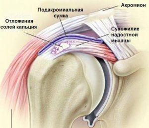 Тендинит плеча схематично