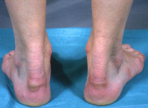 Болит сухожилие на ноге над пяткой