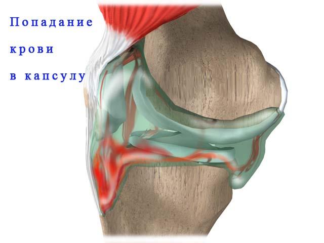 Попадание крови в сустав утолщения на суставах что это