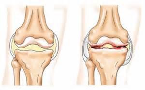 Схема воспаления коленного сустава