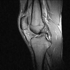 Снимок МРТ колена