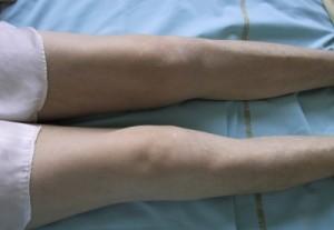 Сиптомы синовита колена