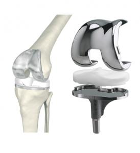 Виды протезов колена