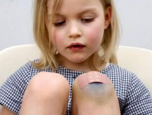 Изображение - Ушиб мягких тканей коленного сустава ushib-kolennogo-sustava-01-300x226