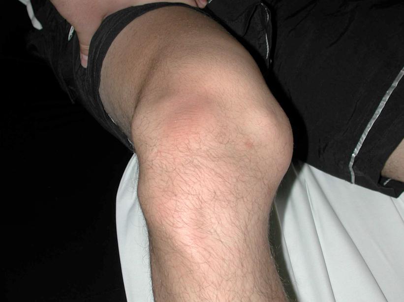 Дегенеративный артрит щиколотки лечение