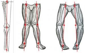 Схема ДОА коленного сустава