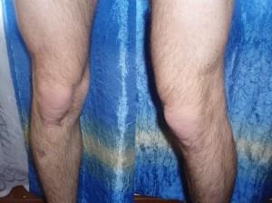 Проявление ДОА коленного сустава