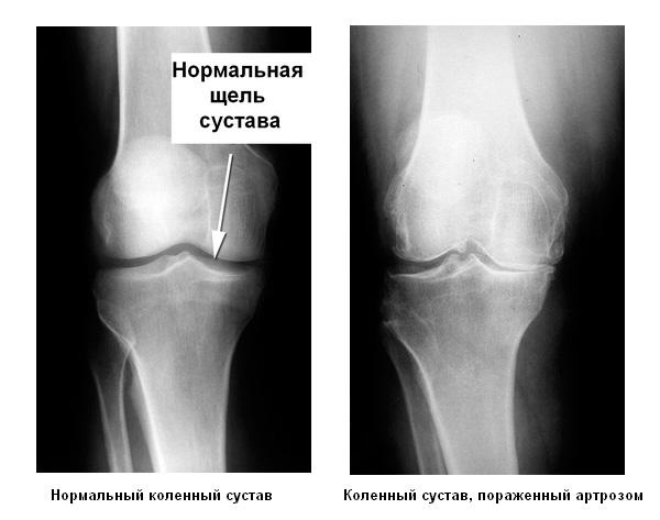 Рентгенограмма остеоартроза