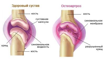 Остеоартроз коленного сустава, схема