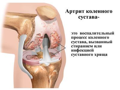 Что такое реактивный артрит коленного сустава неврит плечевого сустава