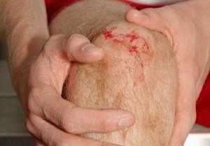 Повреждение мениска при травме колена