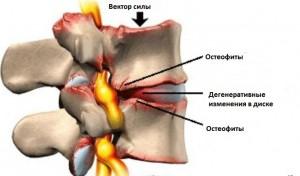Противопоказания к применению блокады коленного сустава
