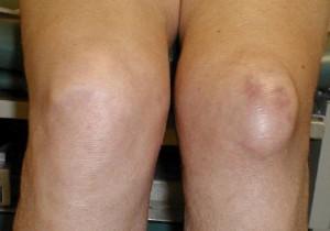Опухоль колена при дегенеративном повреждении мениска
