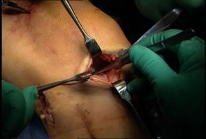 Операция при повреждениях мениска