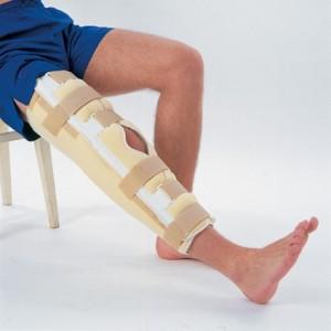 Гипсовая повязка для лечения разрыва связок коленного сустава
