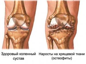 Увеличение хрящевой ткани коленного сустава вид лучезапястного сустава