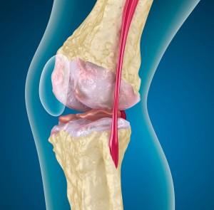 Пателлофеморальный артроз колена
