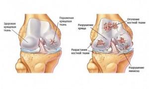 Восстановление хрящевой ткани в коленном суставе дисплазия тазобедренных суставов у сенбернаров