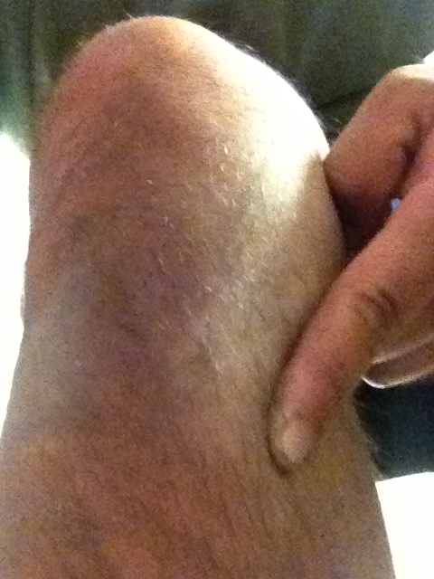Почему ноет нога ниже колена
