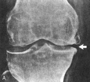Остеосклероз коленного сустава