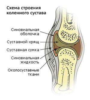 Синовит коленного сустава симптомы и лечение
