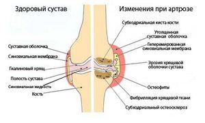 Изображение - Чем отличается артроз от гонартроза коленного сустава gonartroz