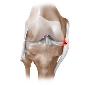Острая боль в коленном суставе - настигает внезапно лечится с трудом